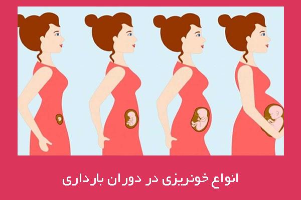 قاعدگی در دوران بارداری